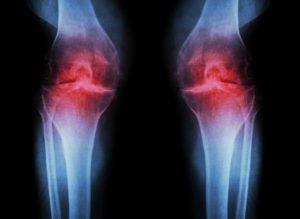 Osteoarthritis Knee ( OA Knee ) ( Film x-ray both knee with arth