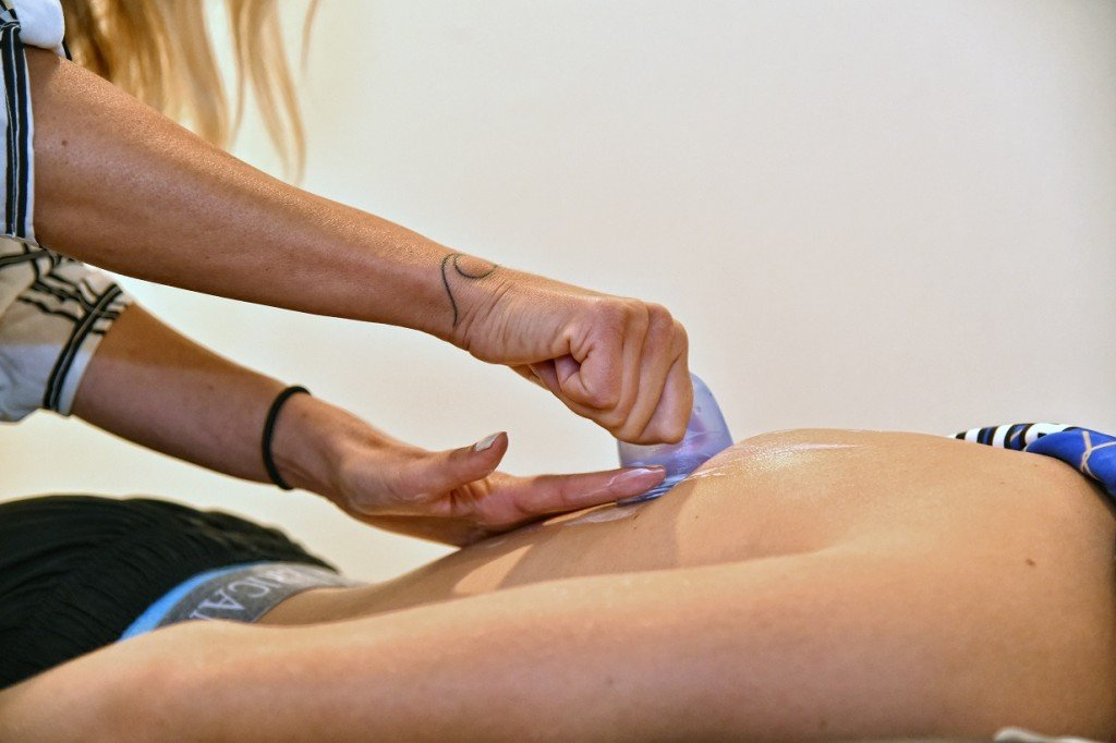 Acupuncture Cupping NJ