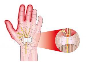 transverse carpal ligament compressed median nerve hand