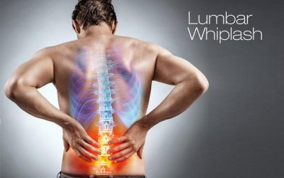 Experiencing low back pain following a car accident (whiplash), sports injury, a fall or trauma?